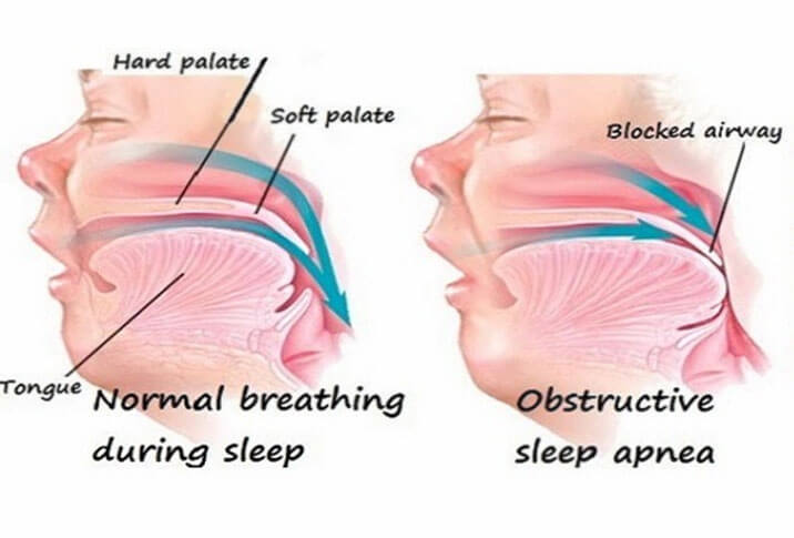 Knowing the Symptoms of Sleep Apnea